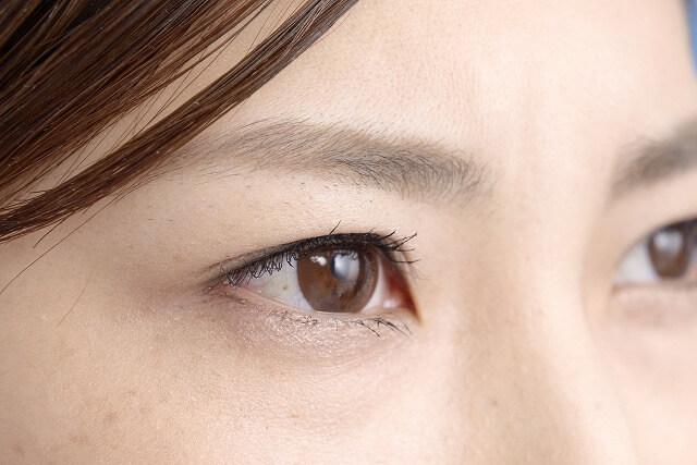 眼瞼内反(逆さまつげ)