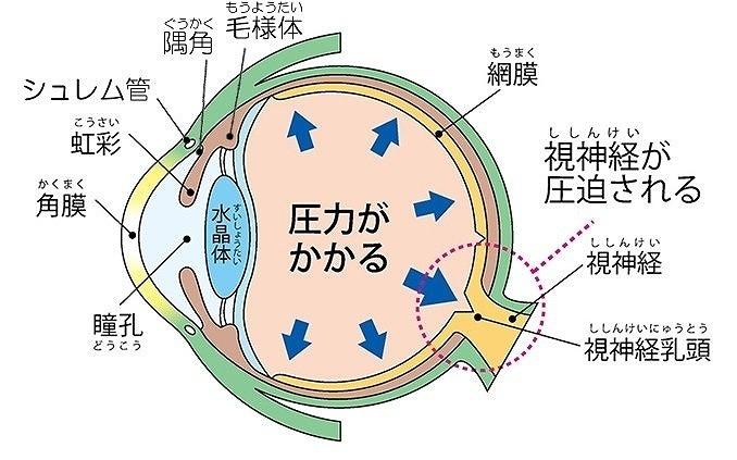 緑内障と眼圧